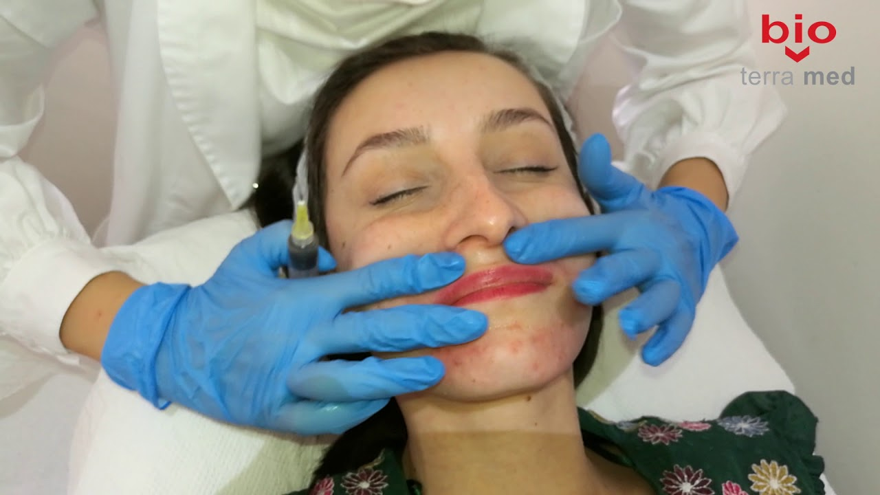 Papilomul (Acrochordon) - Mivaderm - Cabinet Dermatologie Dr. Virginia Chițu