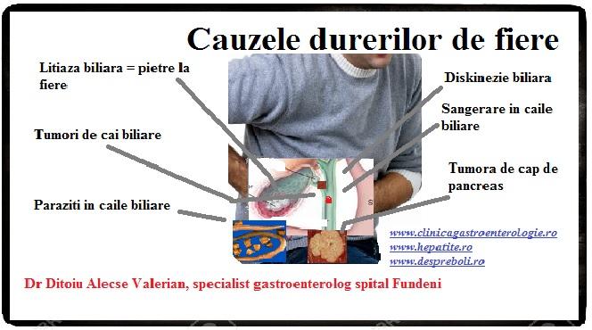 Tratamentul tumorilor cu paraziți, Pastile pentru giardioza pediatrica
