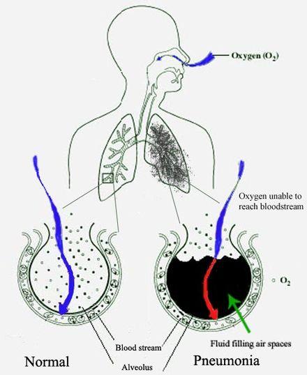 detoxifierea colonului fares pareri