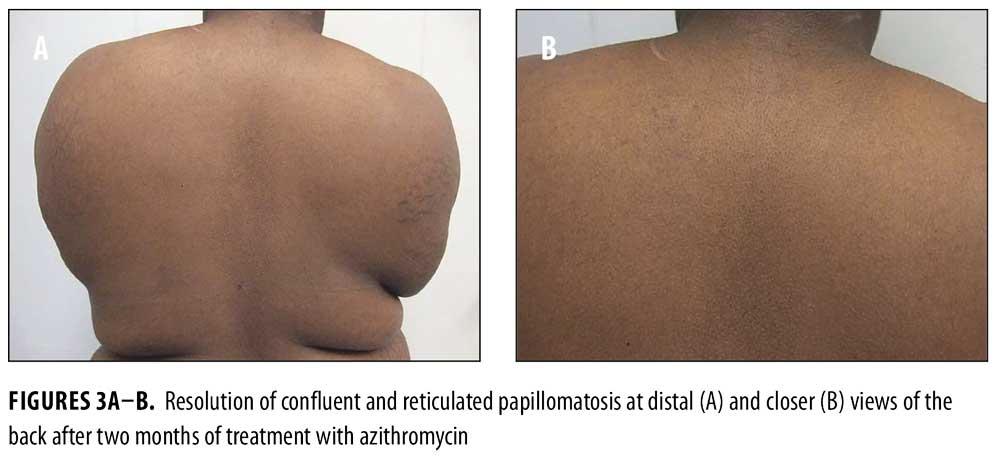 treatment of confluent and reticulated papillomatosis analogi de medicamente pentru viermi