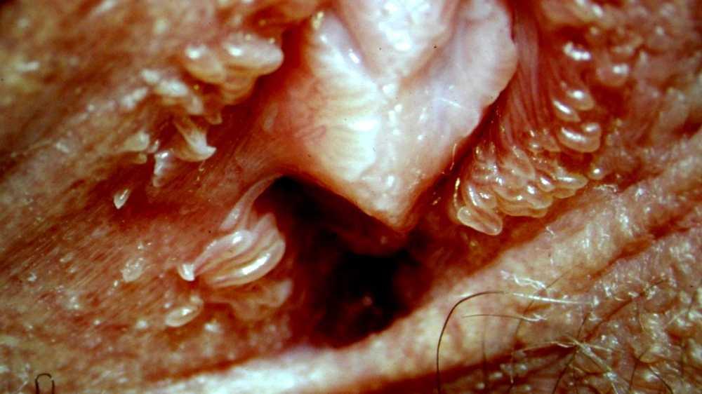 Treatment of vestibular papillomatosis - Vestibular papillomatosis itchy treatment