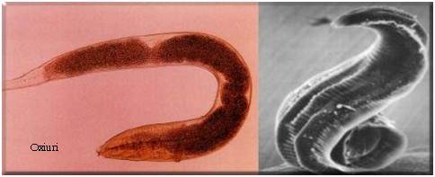 Ascaris – Anticorpi | Medlife