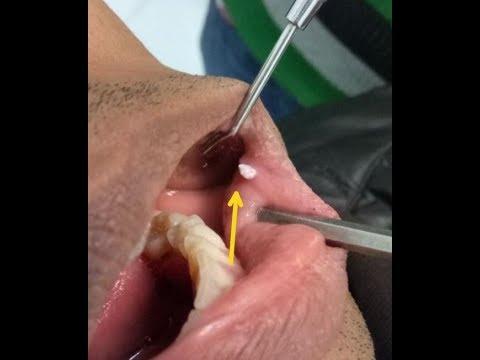 wart mouth treatment