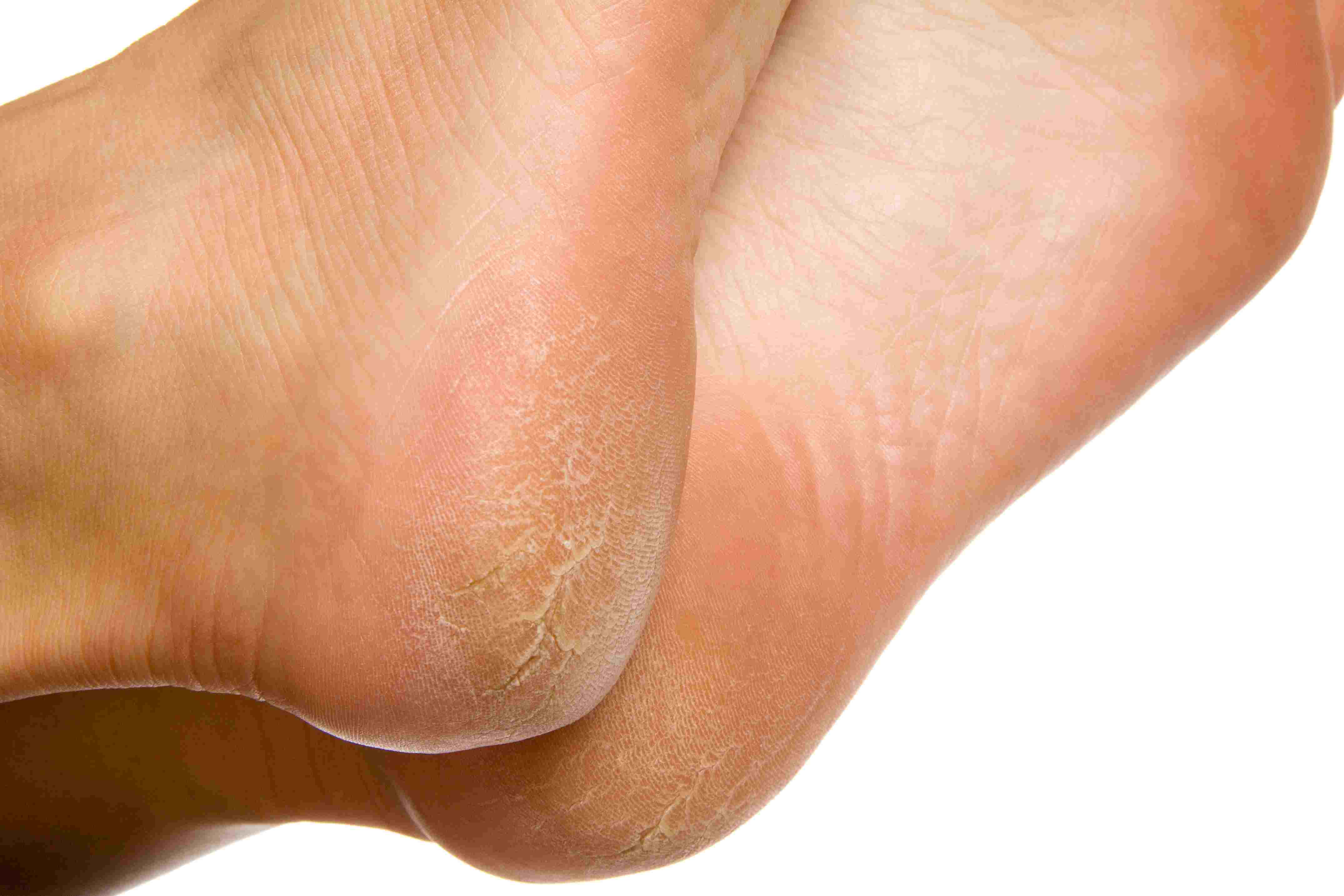 wart on foot with black center)