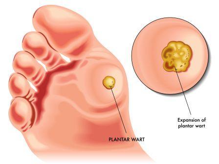 wart treatment ayurvedic medicine