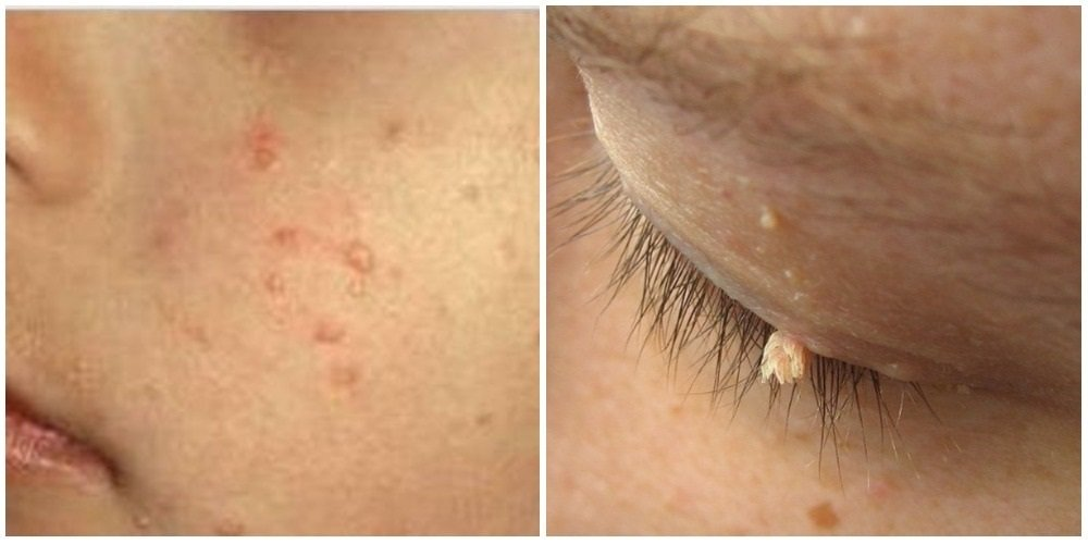 Wart treatment with garlic,, Skin warts on face and neck